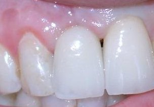 Implantat frisch versorgt